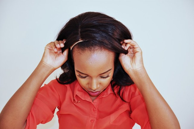 Photo of 10 Easy Tricks To Protect Your Fragile Hairline!