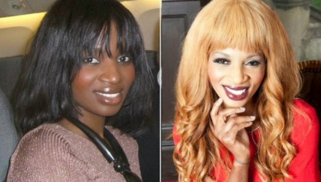 Photo of Harmful Effects Of Skin Bleaching You Should Know!