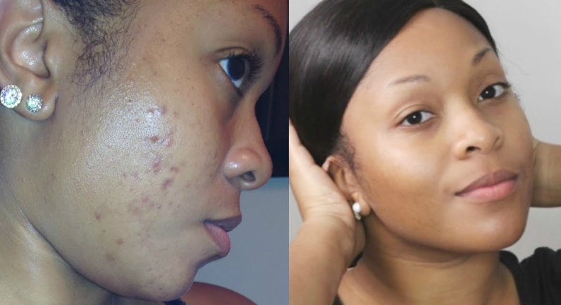 Photo of How To Get Rid Of Acne Scars In 10 Easy Ways