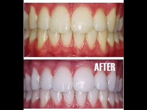Photo of 5 Ways Natural Ways To Help You Get Whiter Teeth