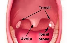 Photo of 5 Natural Ways To Treat Tonsil Stones